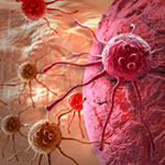 manfaat transfer factor vs kanker tumor