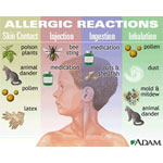 testimoni alergi 4life transfer factor