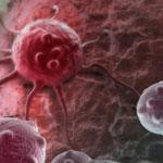 manfaat transfer factor sistem daya tahan tubuh penyakit kanker featured